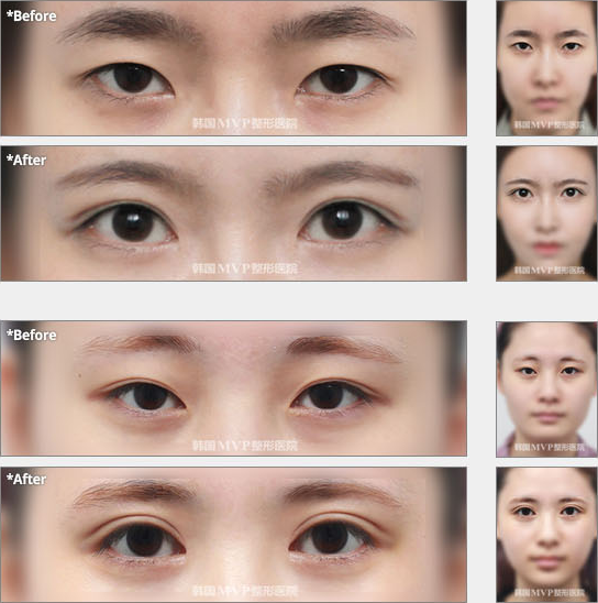 Incisional Double Eyelid Surgery Recovery